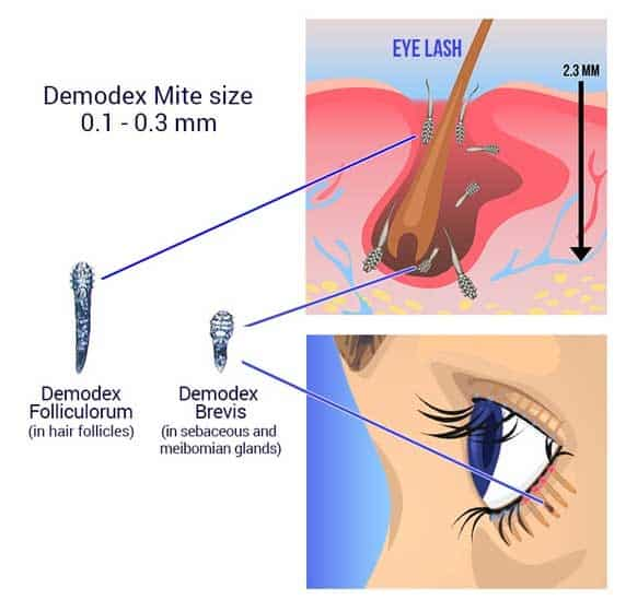 Lash mites (Demodex) in the hair follicles and in the sebaceous glands.