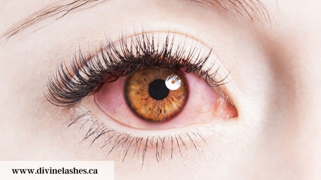 Red eye because of infection