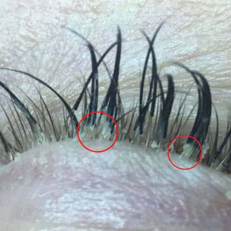 Eyelash Mites: The Truth About Eyelash Extensions (With Pictures)