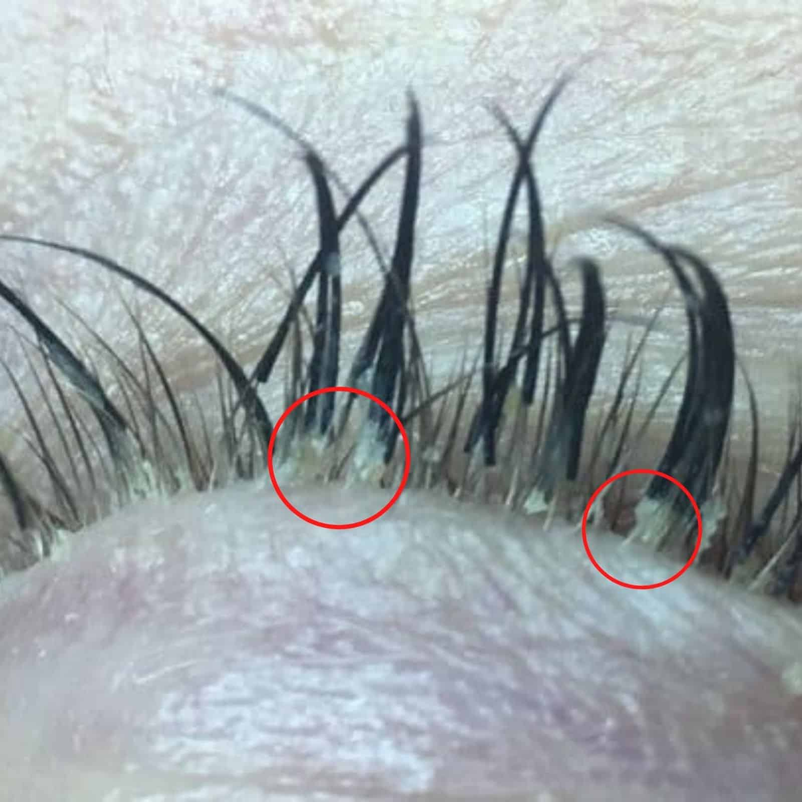 Lash mite infestation on lash line. Circled lash mites eggs.