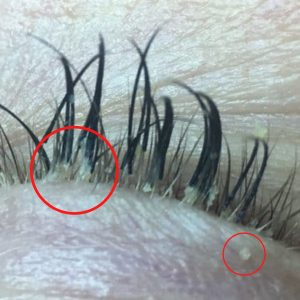 Lash mite infestation on lash line.
